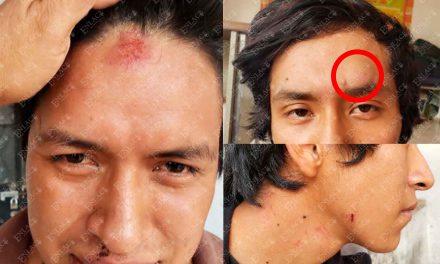 Policías de Chiautla golpean a jóvenes en comandancia