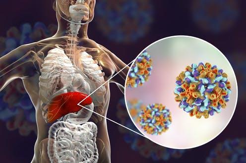 En Huehuetlán promueven campaña sobre la hepatitis