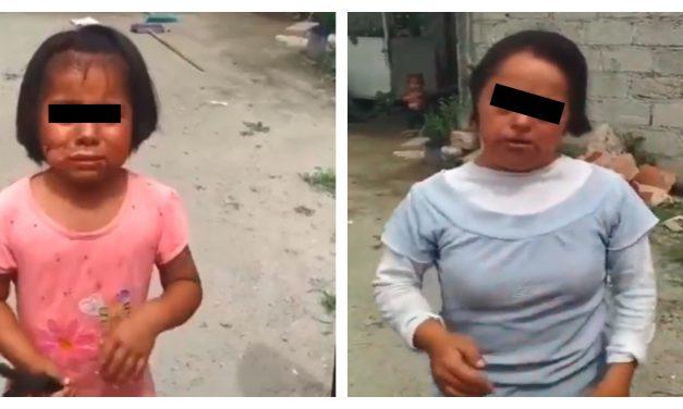 Mujer quema el rostro de su nieta e hija con Síndrome de Down en Tecamachalco